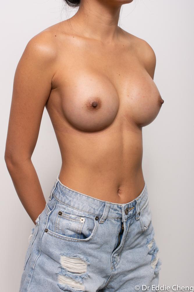 post op breast augmentation dr eddie cheng brisbane (2 of 5)