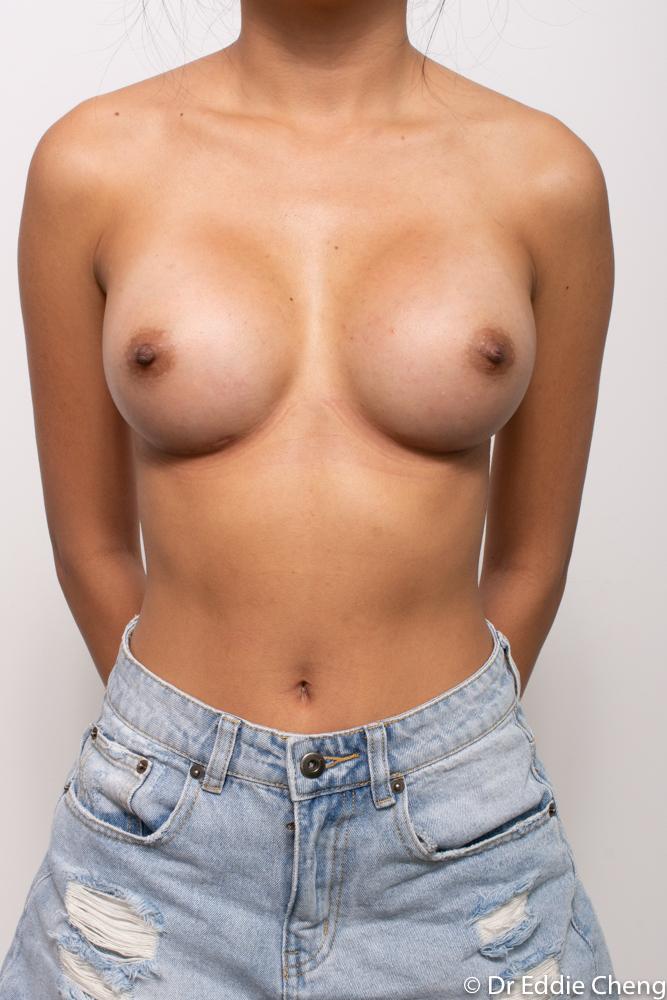 post op breast augmentation dr eddie cheng brisbane (3 of 5)