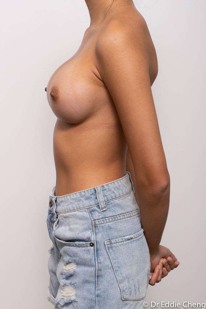 post op breast augmentation dr eddie cheng brisbane (5 of 5)