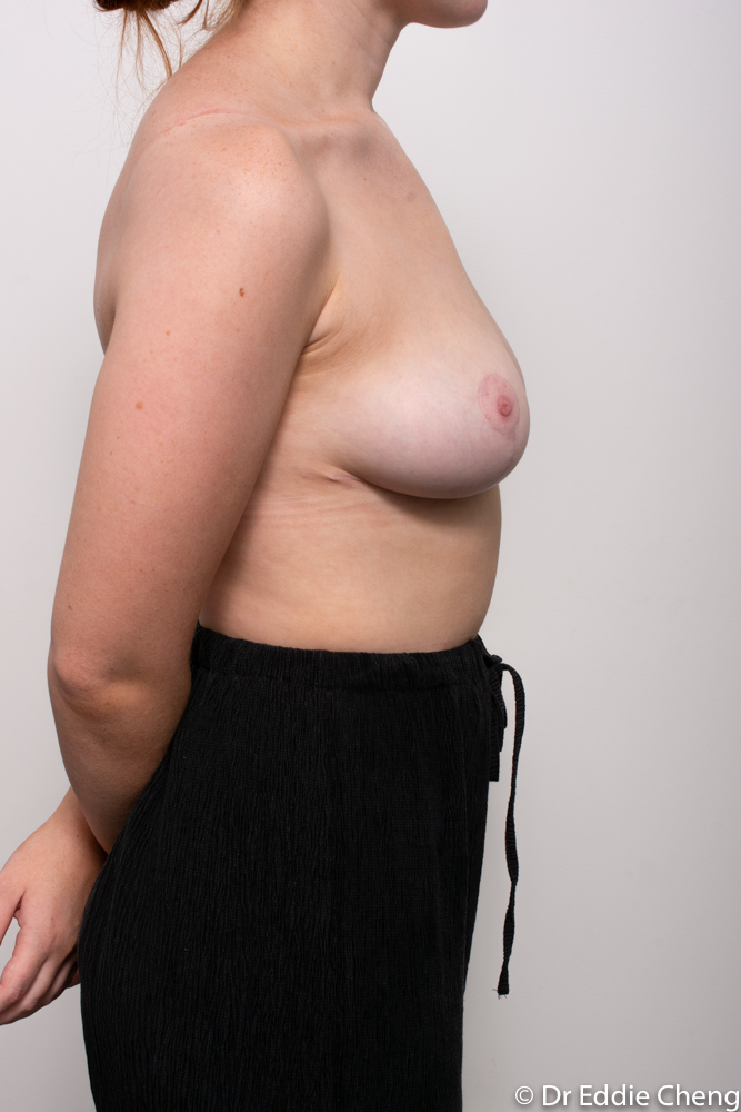 post op breast reduction dr eddie cheng brisbane (1 of 3)