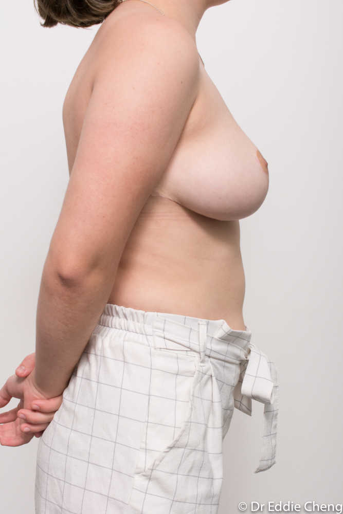 post op breast reduction dr eddie cheng brisbane (1 of 4)