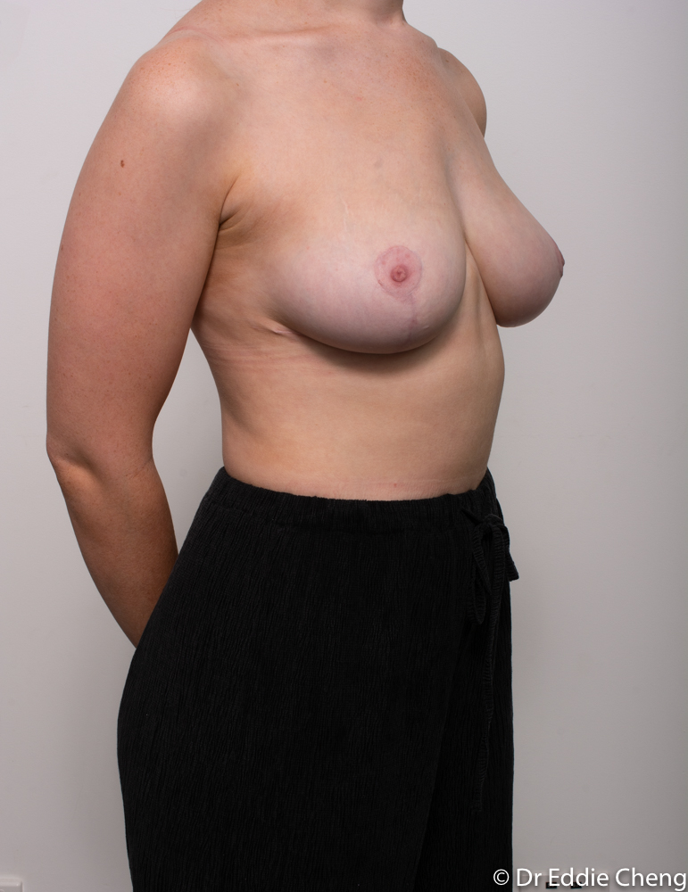 post op breast reduction dr eddie cheng brisbane (2 of 3)