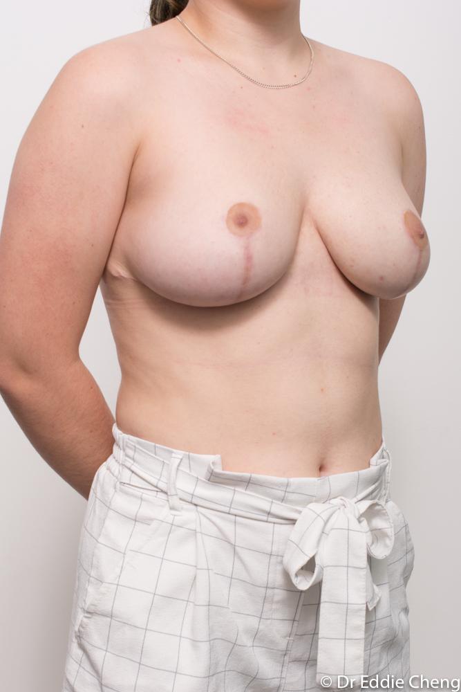 post op breast reduction dr eddie cheng brisbane (2 of 4)