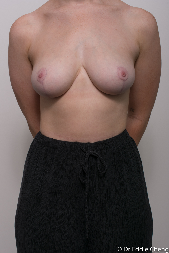 post op breast reduction dr eddie cheng brisbane (3 of 3)
