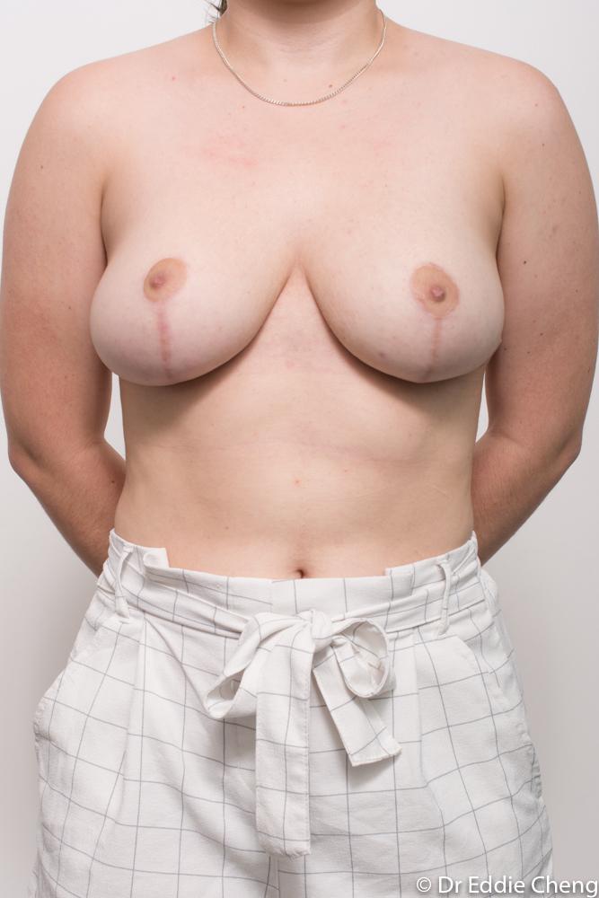 post op breast reduction dr eddie cheng brisbane (3 of 4)
