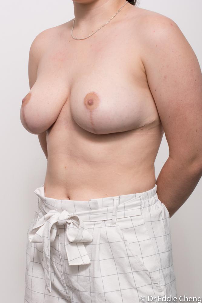 post op breast reduction dr eddie cheng brisbane (4 of 4)
