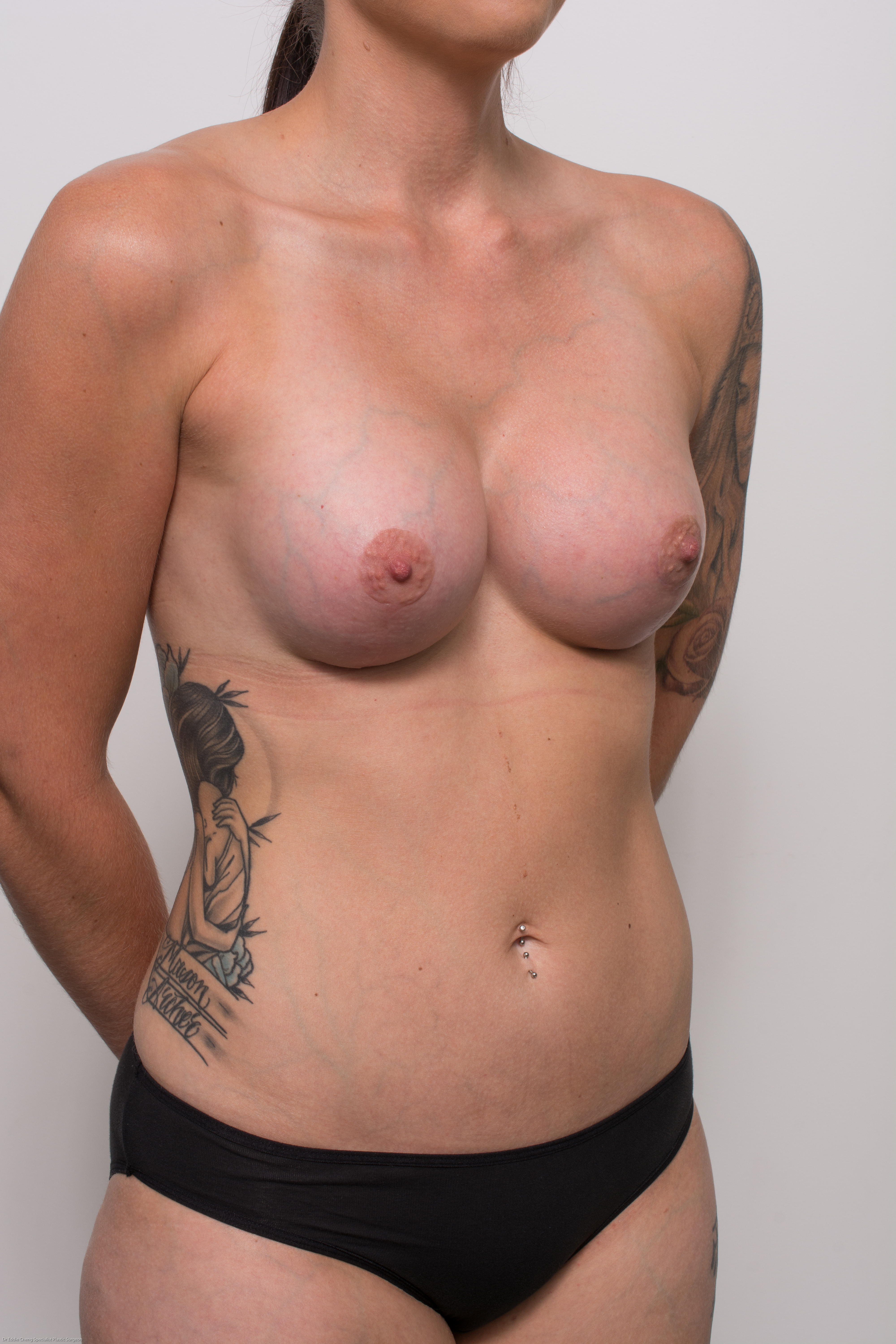 post op correction of tuberous breasts (2 of 5)
