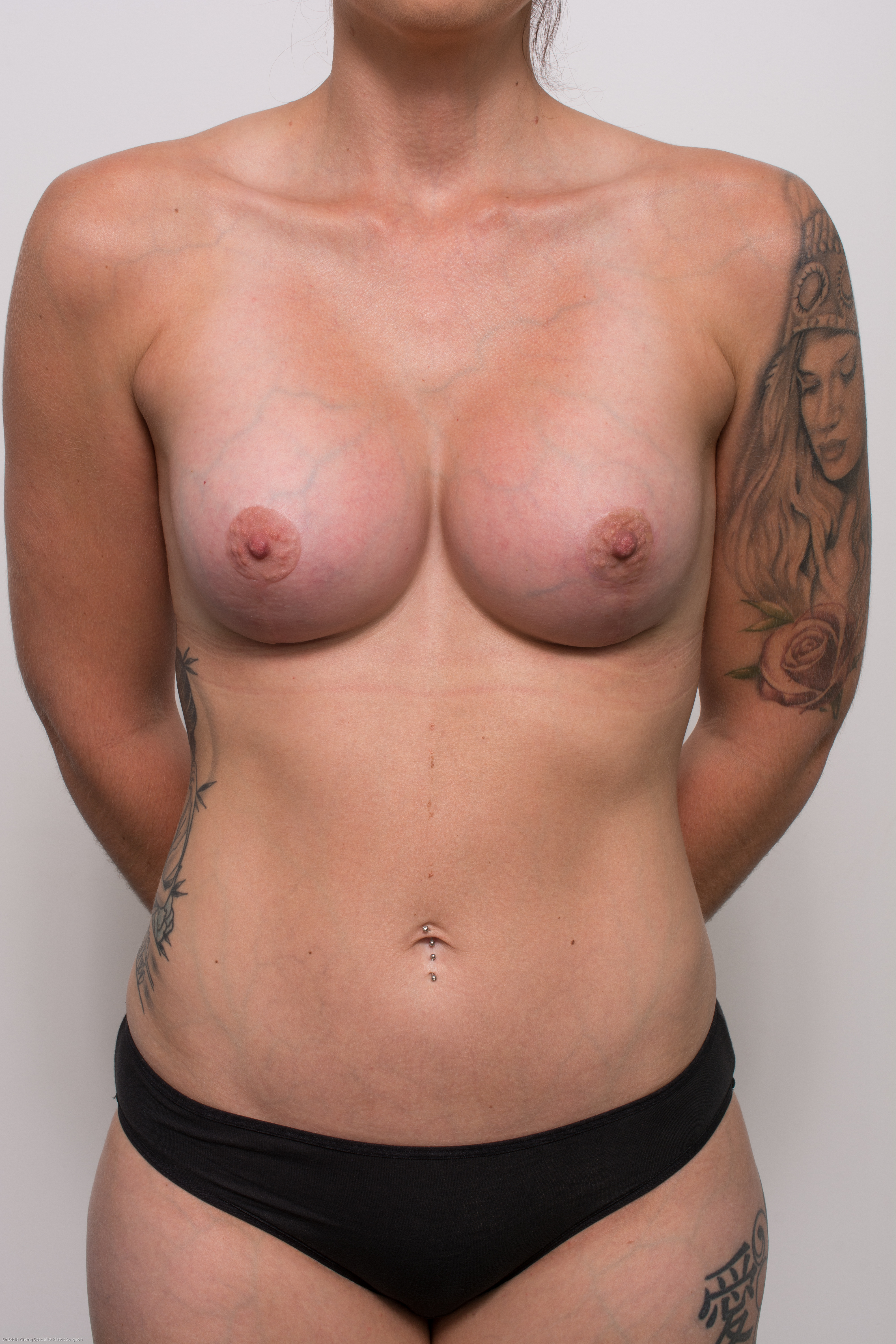 post op correction of tuberous breasts (3 of 5)