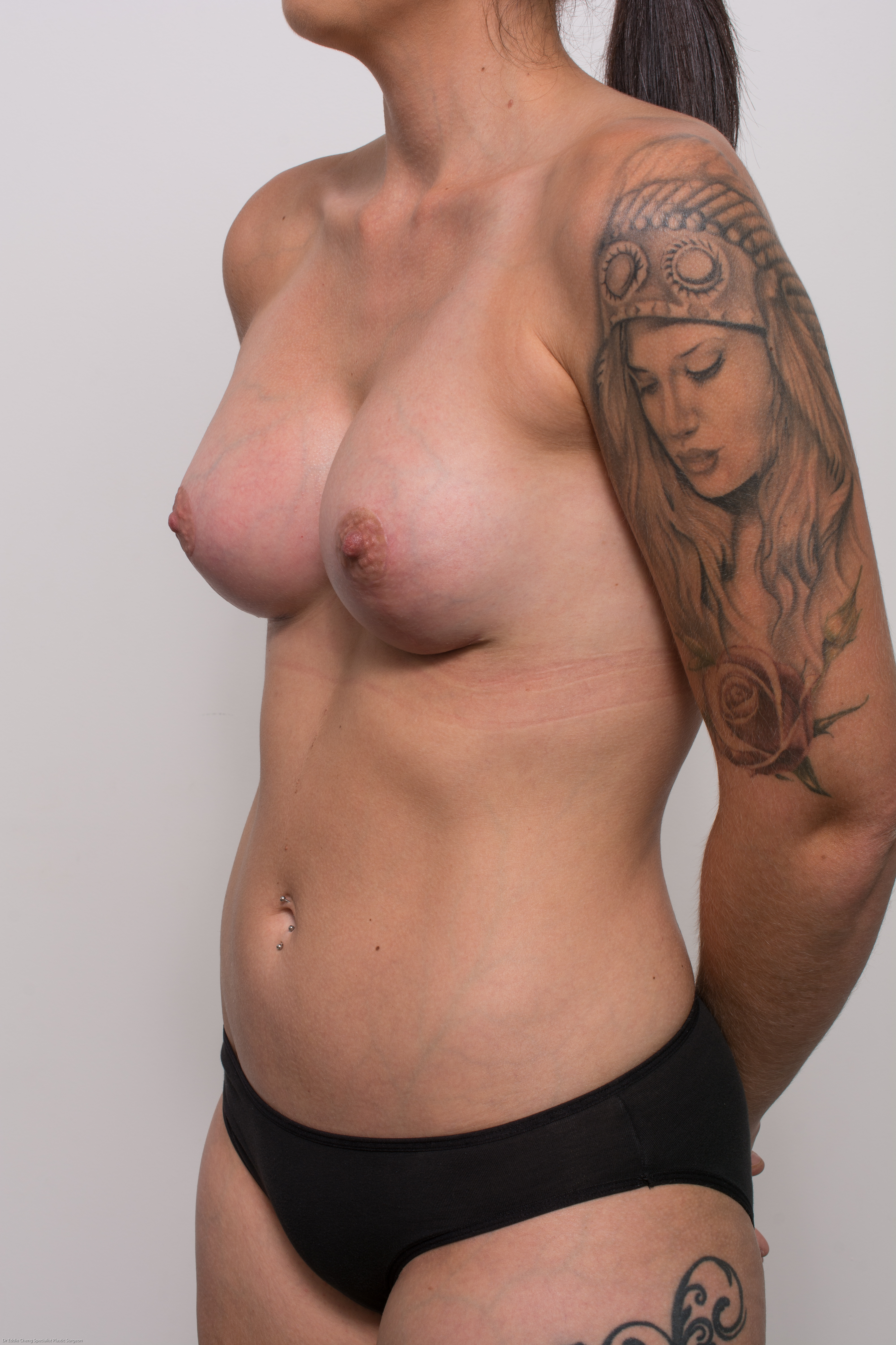 post op correction of tuberous breasts (4 of 5)