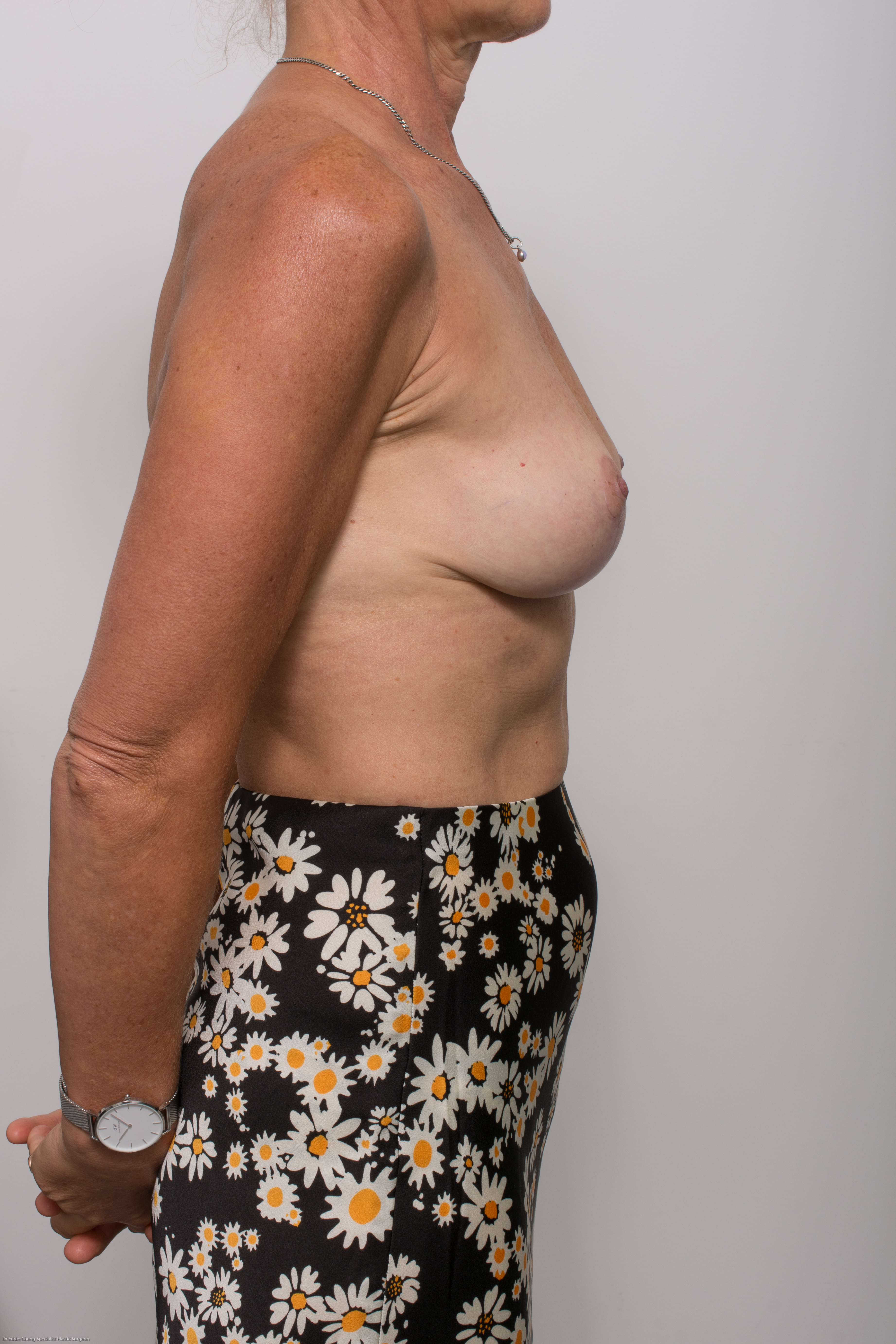 post op removal of breast implants and mastopexy (1 of 5)