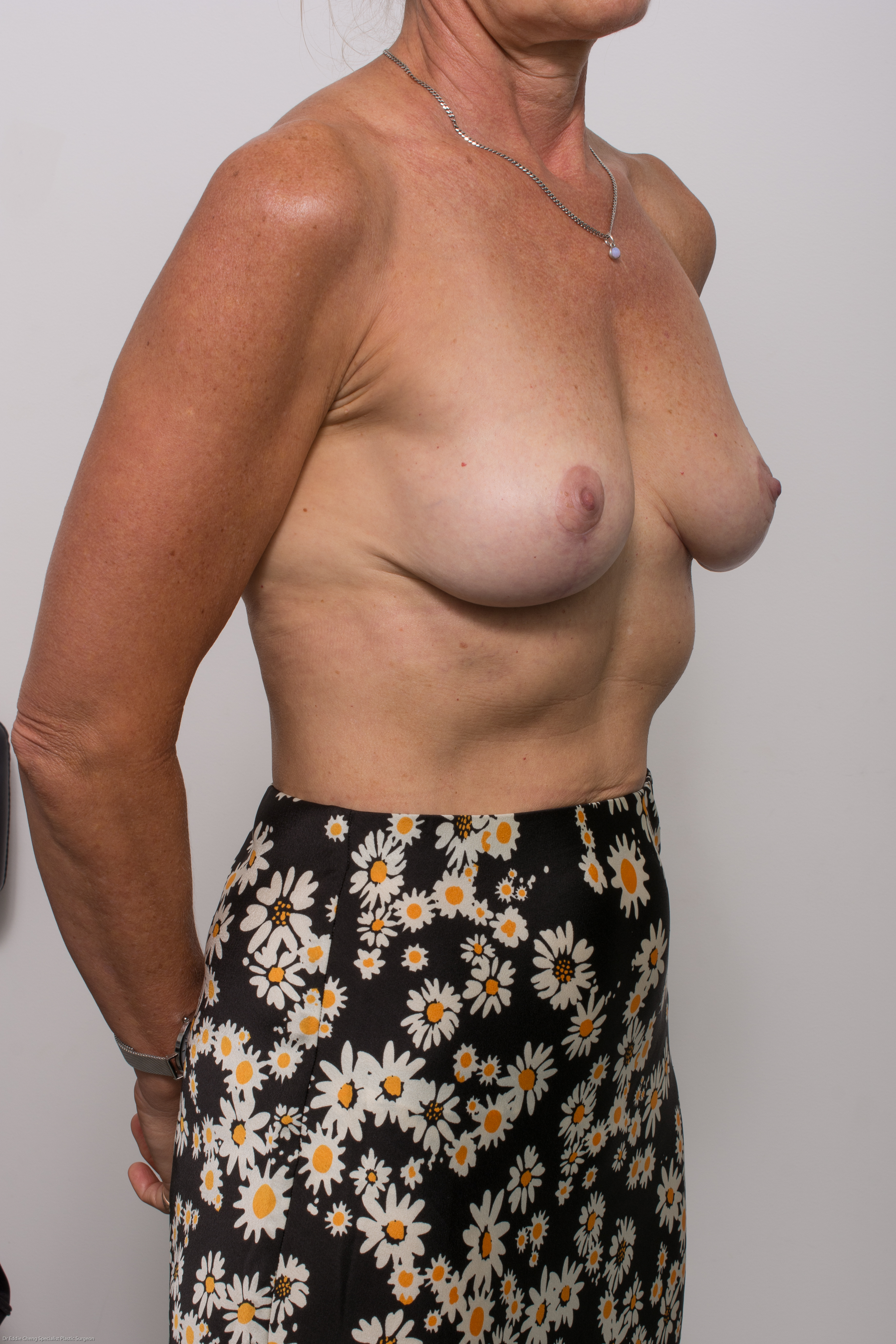 post op removal of breast implants and mastopexy (2 of 5)