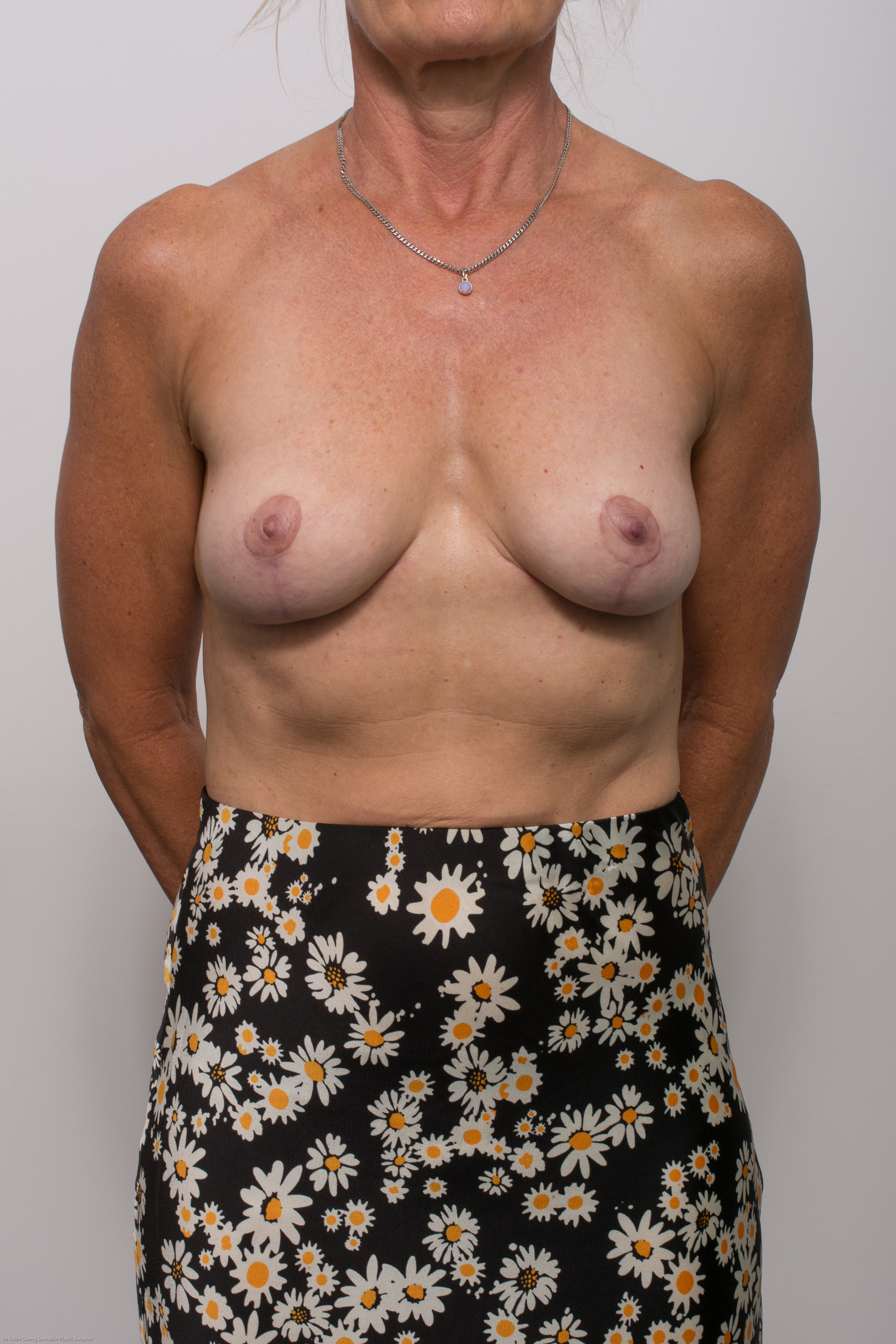 post op removal of breast implants and mastopexy (3 of 5)