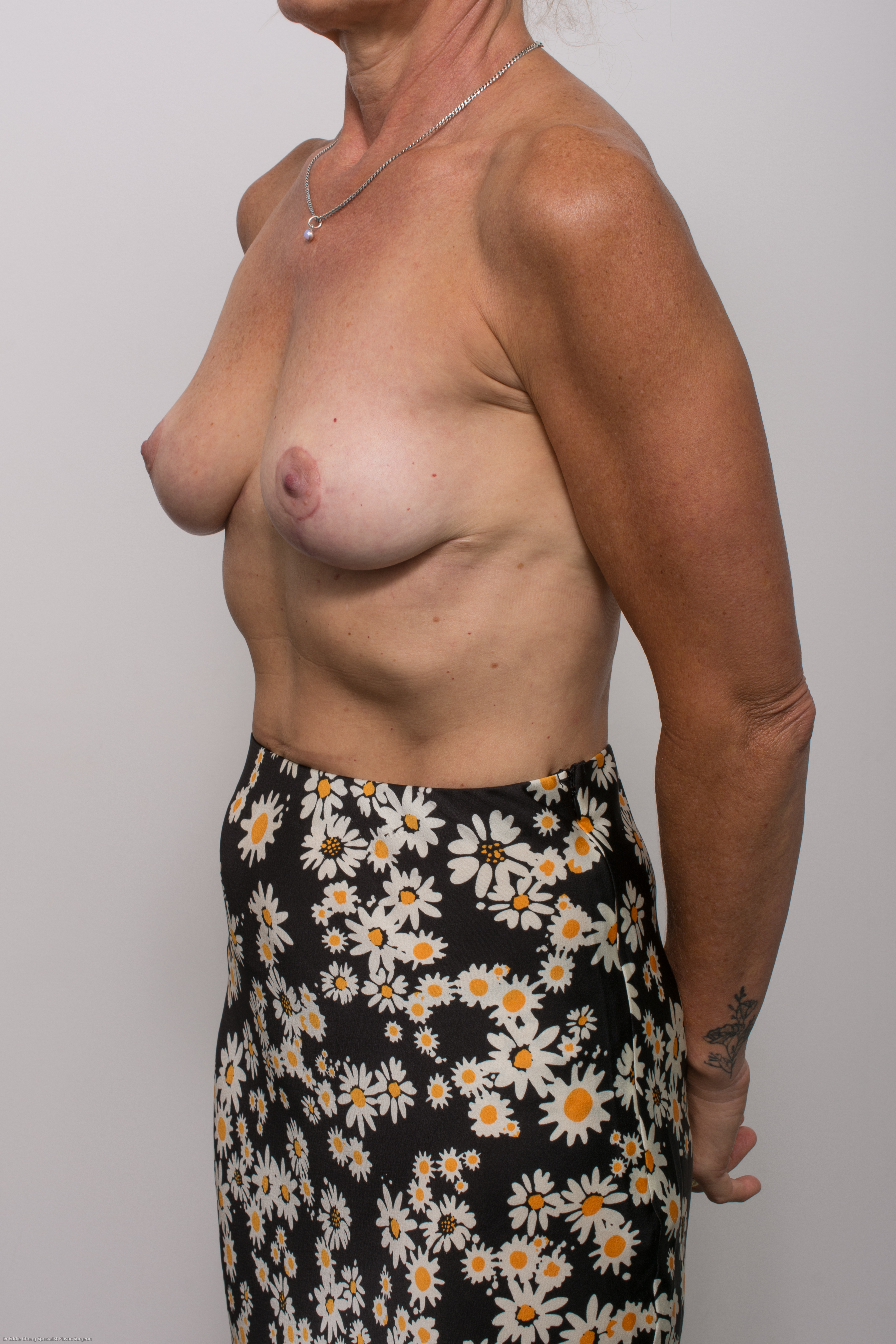 post op removal of breast implants and mastopexy (4 of 5)
