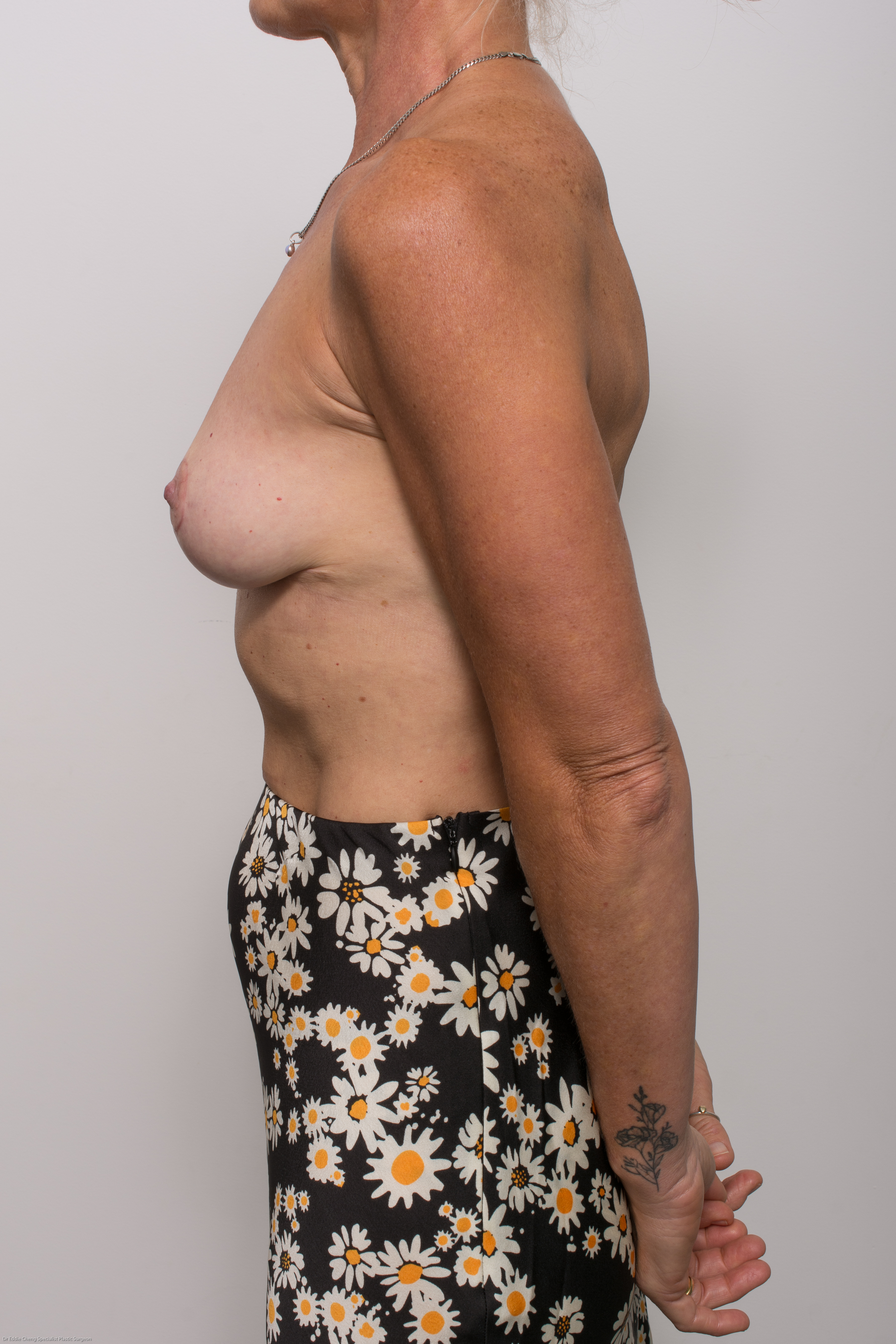 post op removal of breast implants and mastopexy (5 of 5)