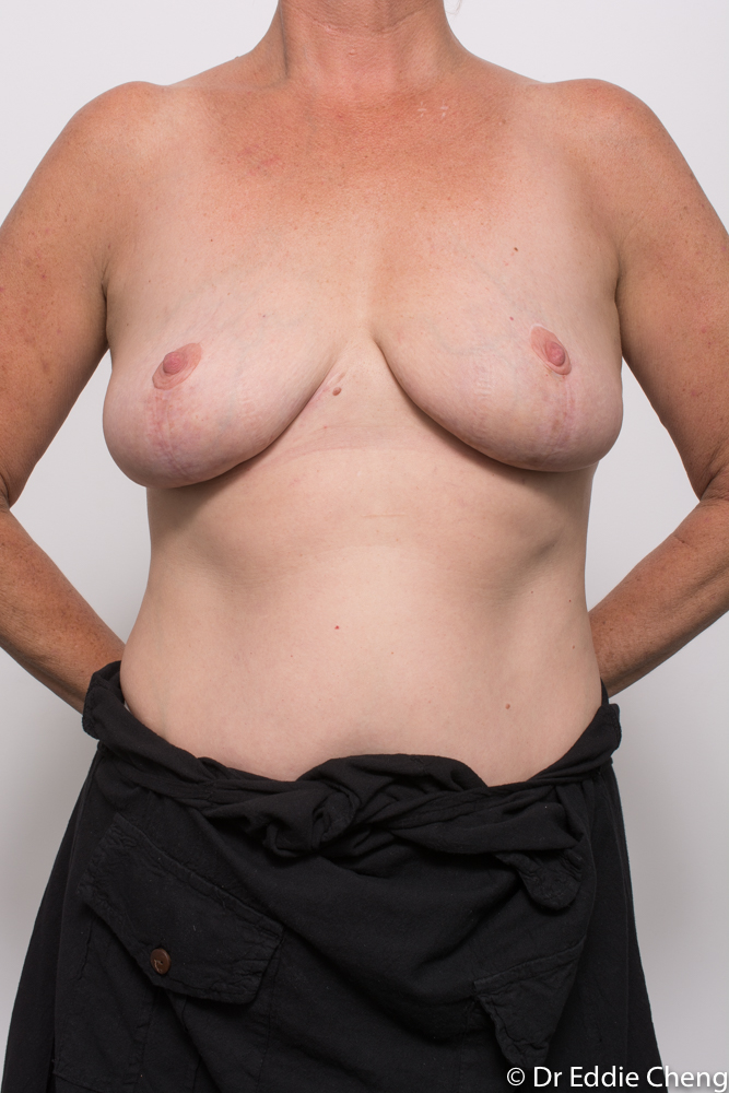post op removal of breast implants and mastopexy dr eddie cheng brisbane (2 of 4)