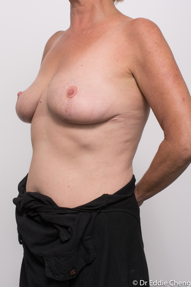 post op removal of breast implants and mastopexy dr eddie cheng brisbane (3 of 4)
