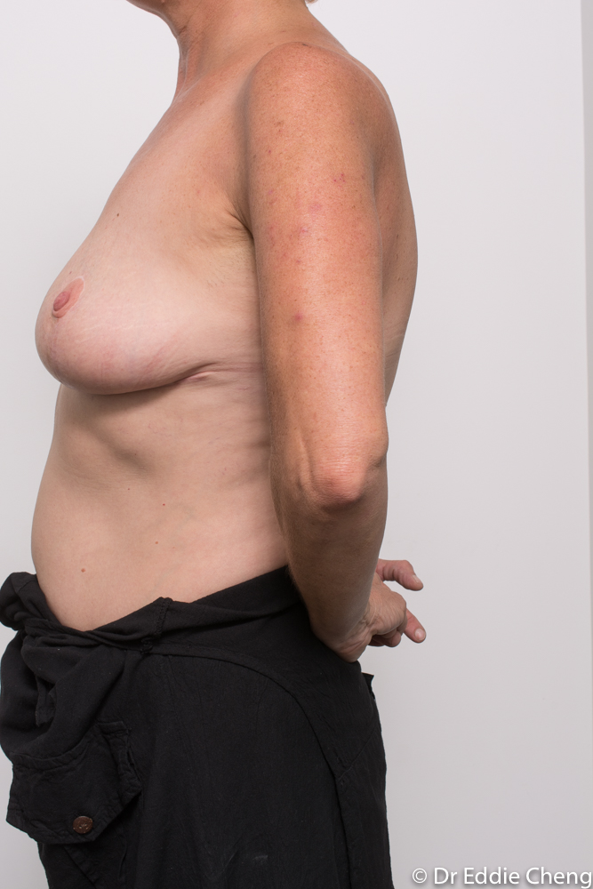 post op removal of breast implants and mastopexy dr eddie cheng brisbane (4 of 4)
