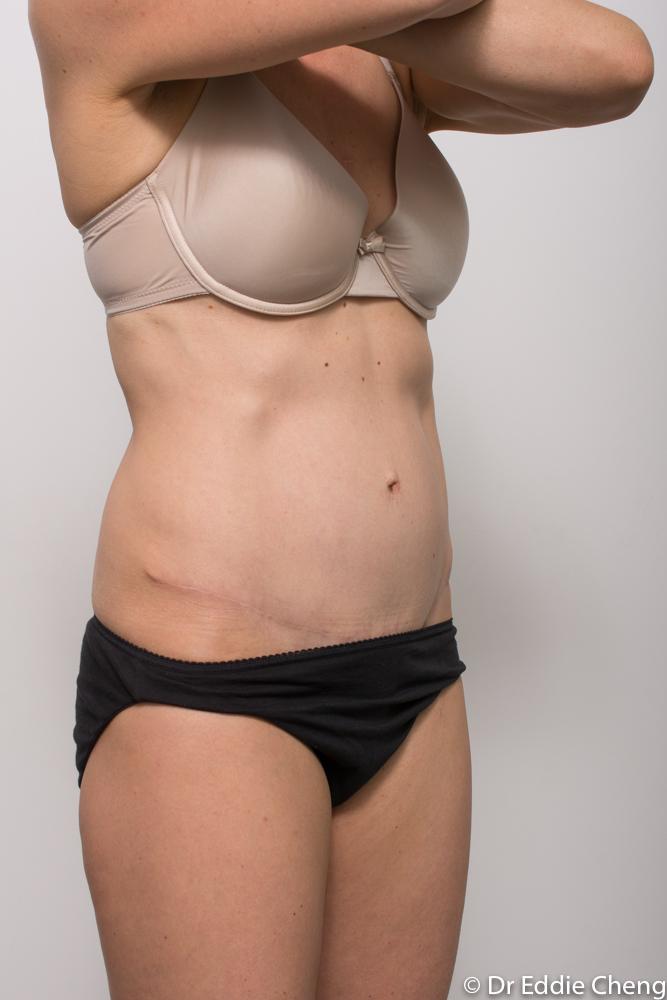 post op tummy tuck dr eddie cheng brisbane (2 of 5)-1