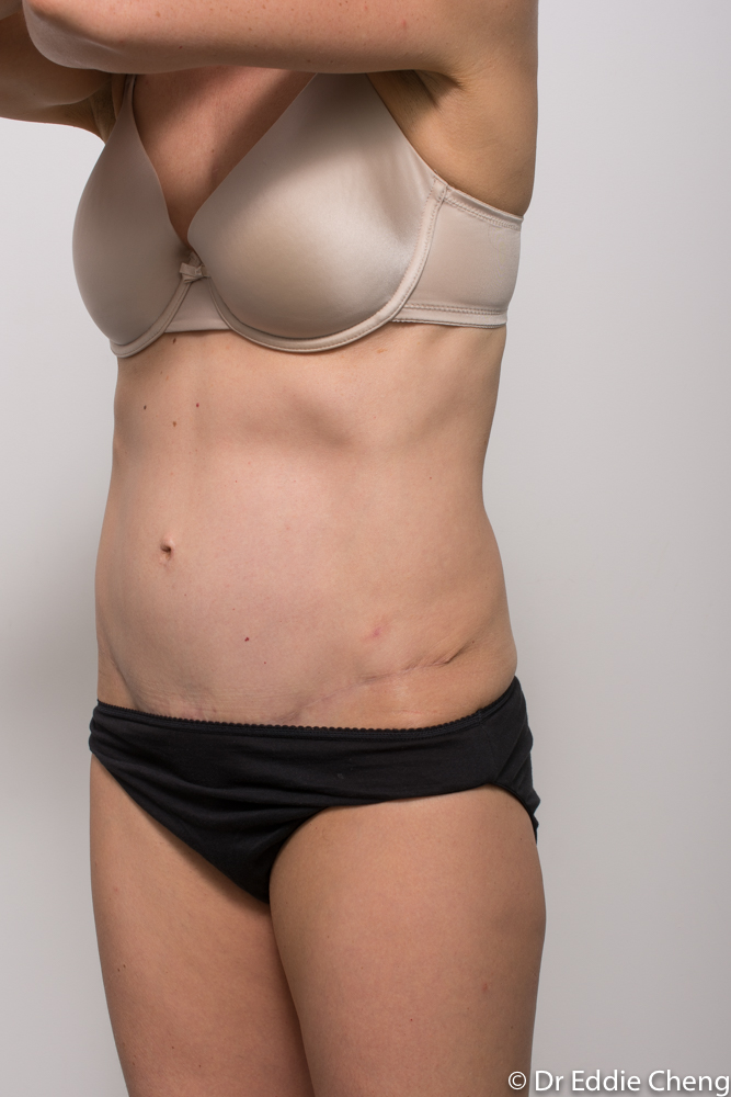 post op tummy tuck dr eddie cheng brisbane (4 of 5)-1