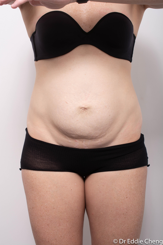 post, abdominoplasty (2 of 4)