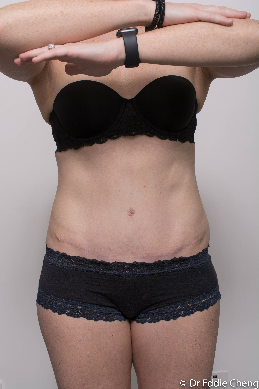 post, abdominoplasty (4 of 4)