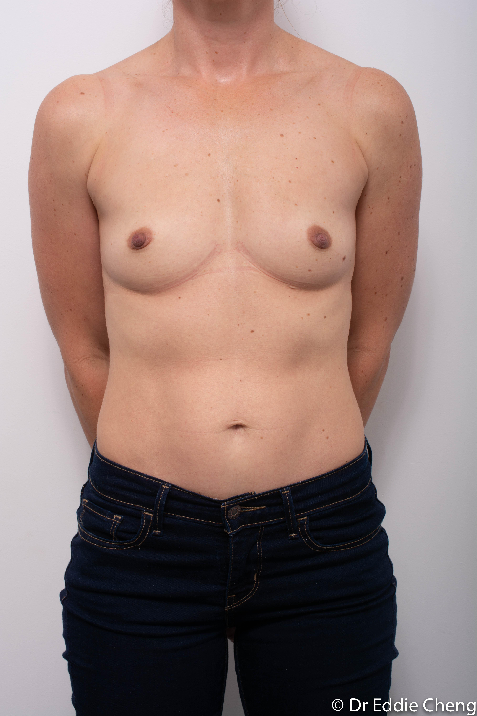 Breast Augmentation 1