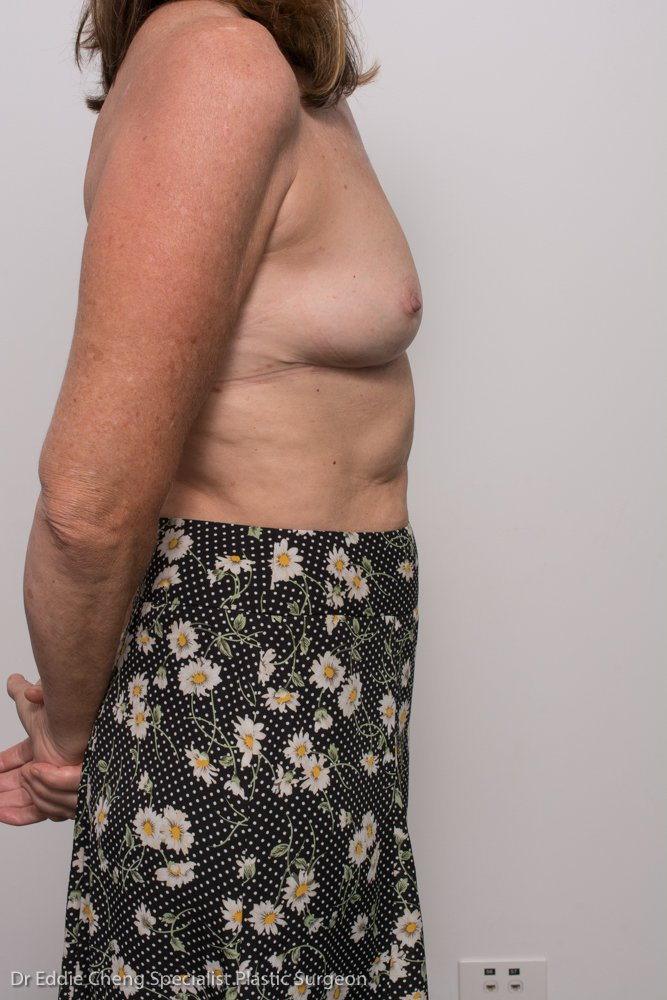 post, removal of breast implants, capsulectomy, breast lift (1 of 5)