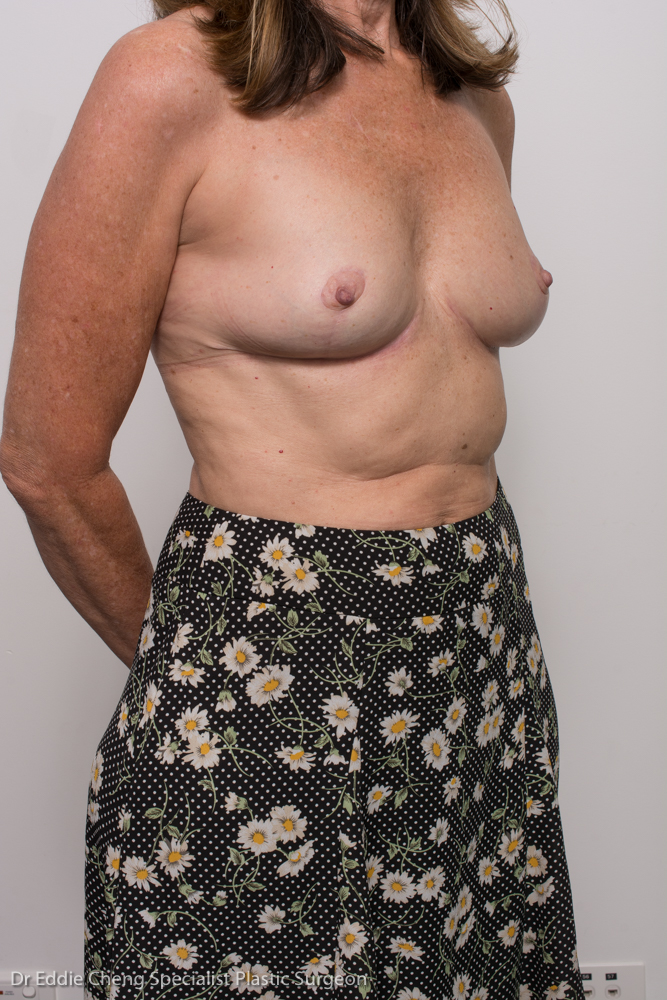 post, removal of breast implants, capsulectomy, breast lift (2 of 5)