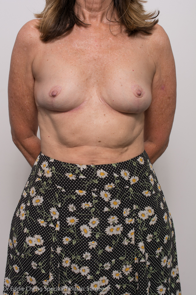 post, removal of breast implants, capsulectomy, breast lift (3 of 5)