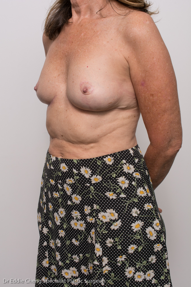 post, removal of breast implants, capsulectomy, breast lift (4 of 5)