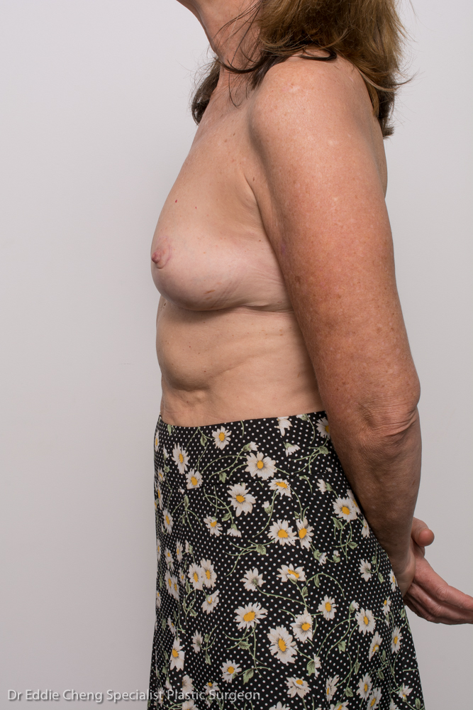post, removal of breast implants, capsulectomy, breast lift (5 of 5)