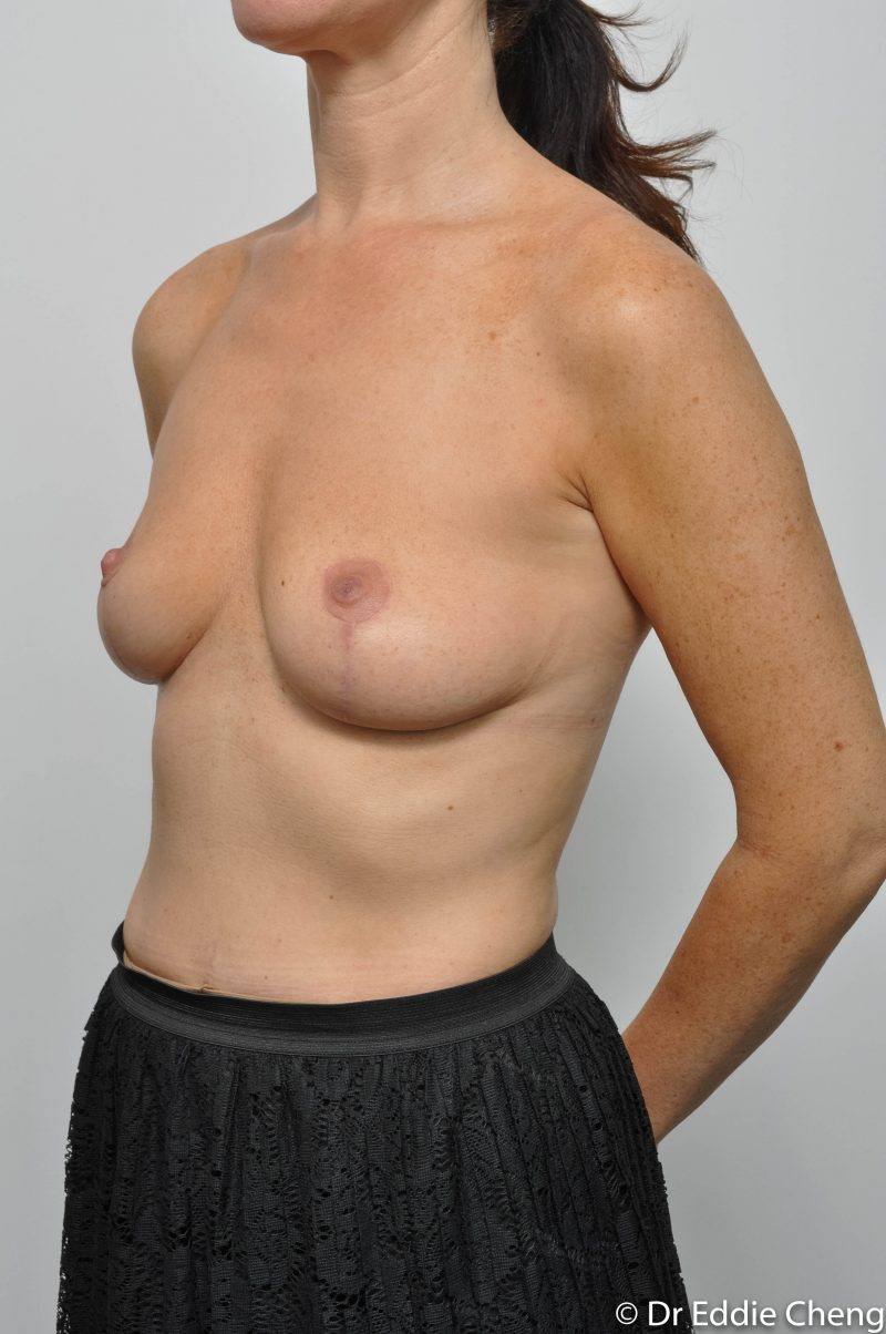 post-op-mastopexy-breast-lift-5-12-2-800x1204-1