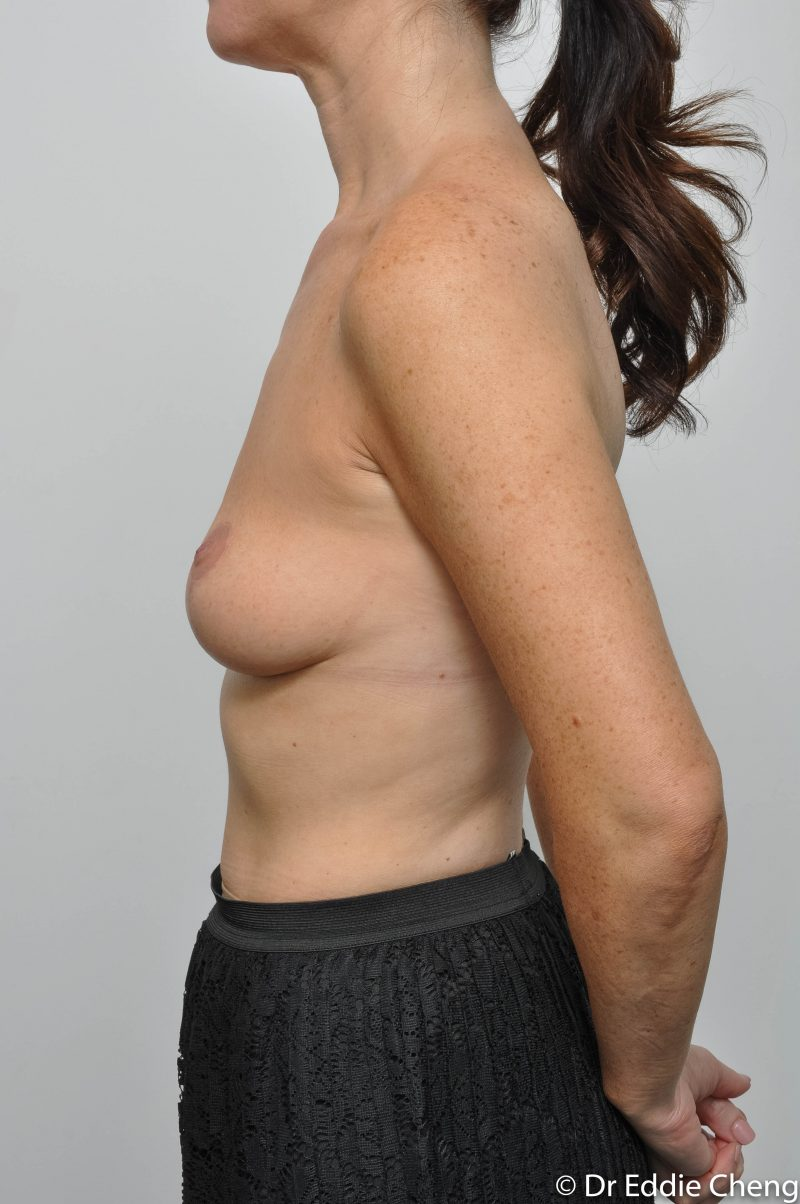 post-op-mastopexy-breast-lift-5-12-3-800x1204-1