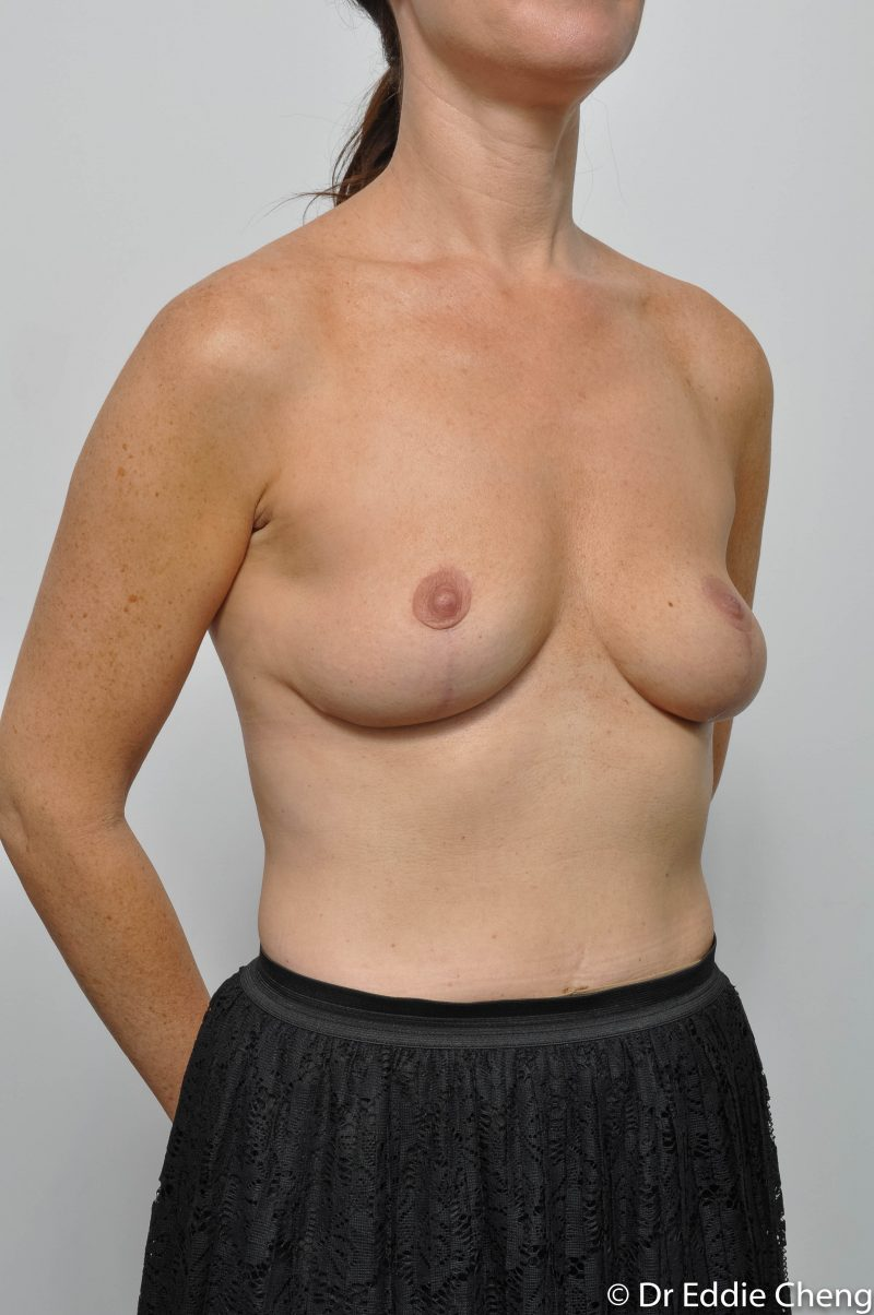 post-op-mastopexy-breast-lift-5-12-4-800x1204-1