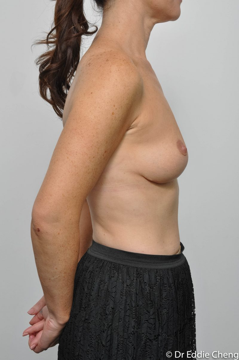 post-op-mastopexy-breast-lift-5-12-5-800x1204-1