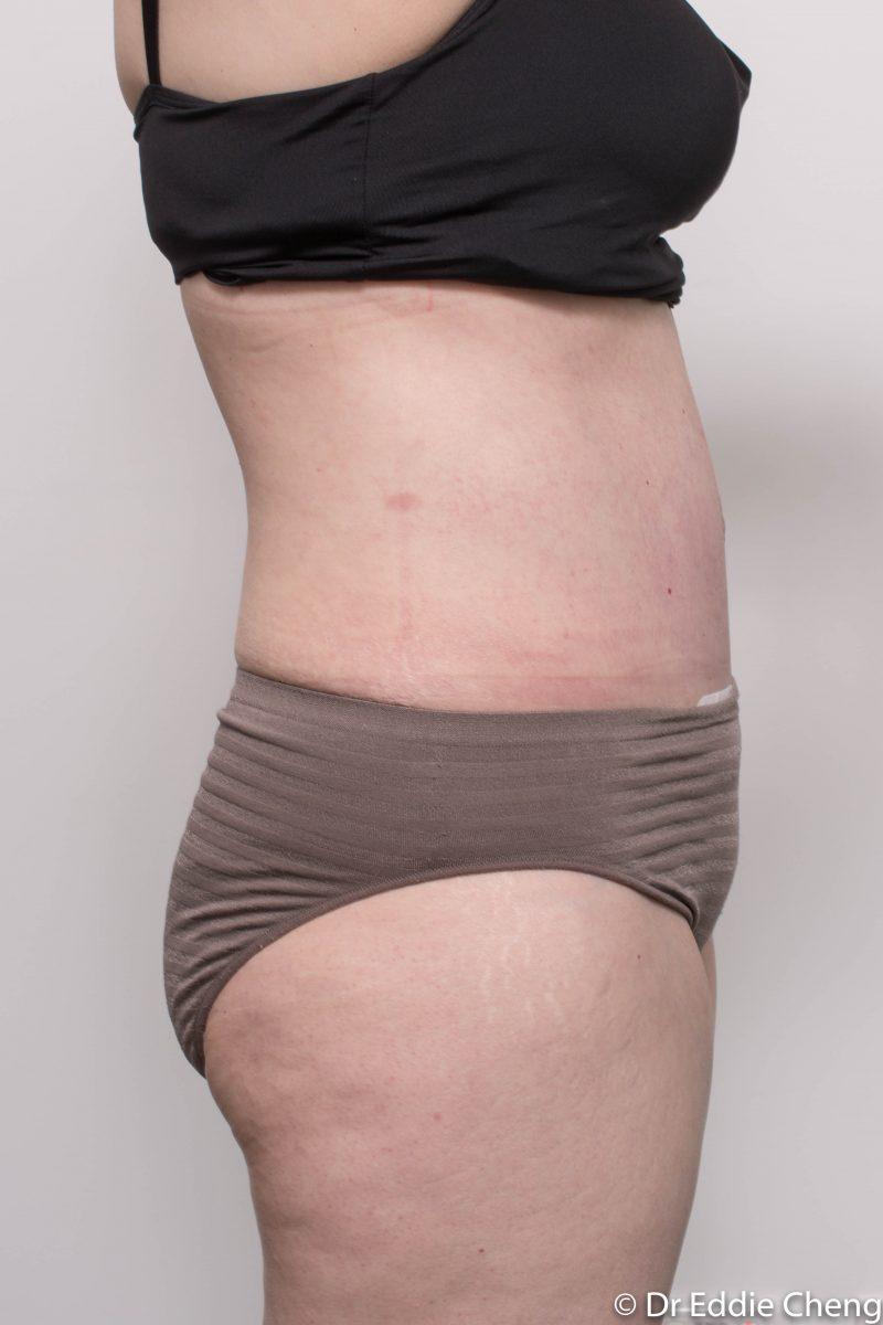 post-op-tummy-tuck-6-weeks-6-5-1-800x1200