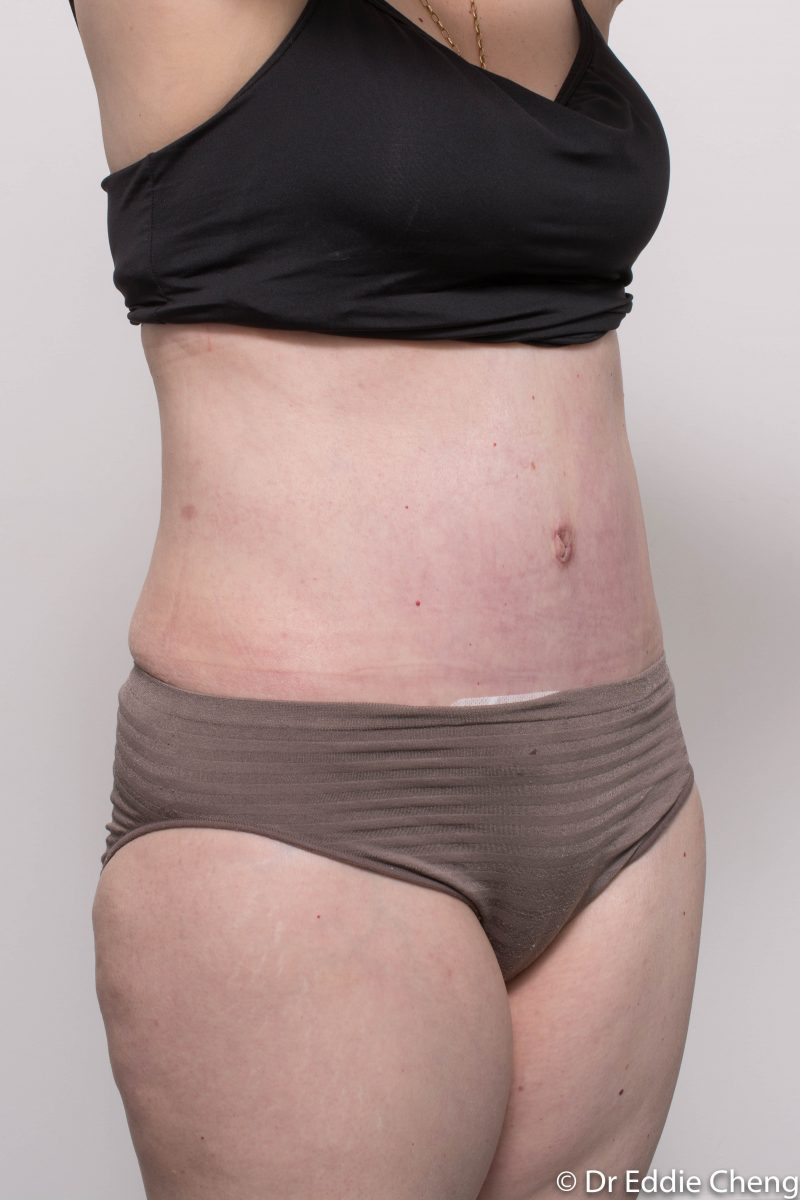 post-op-tummy-tuck-6-weeks-6-5-2-800x1200
