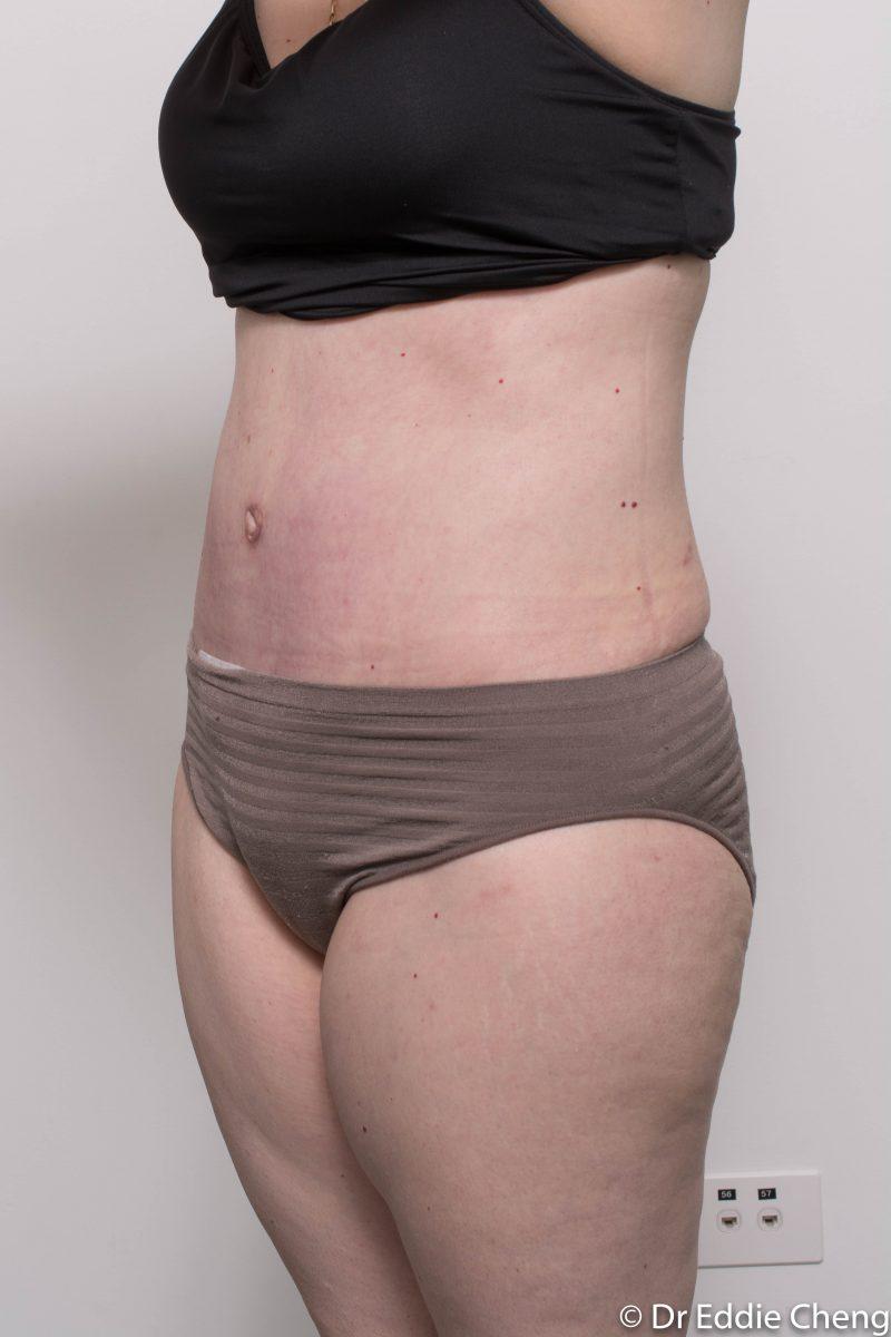 post-op-tummy-tuck-6-weeks-6-5-4-800x1200