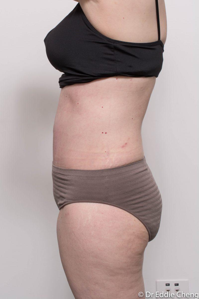 post-op-tummy-tuck-6-weeks-6-5-5-800x1200