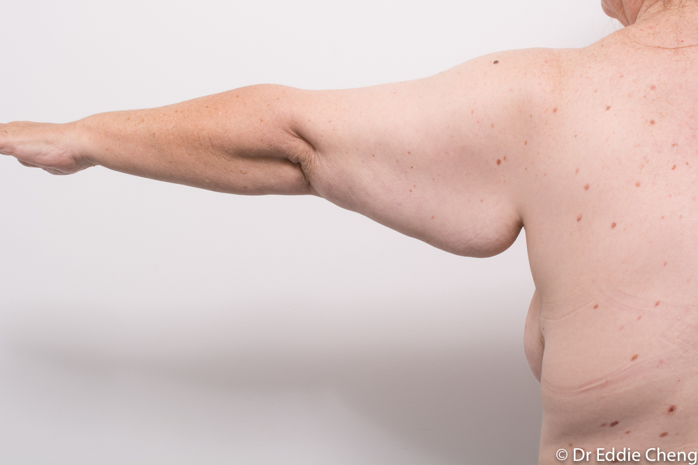 pre and post armlift dr eddie cheng brisbane (1 of 2)