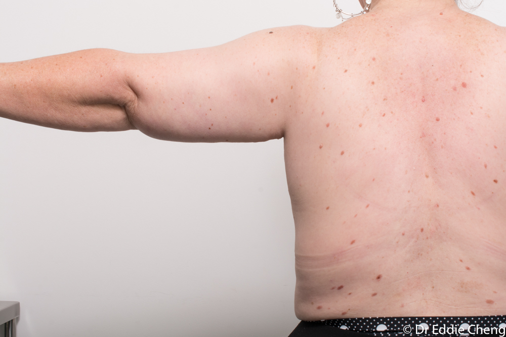 pre and post armlift dr eddie cheng brisbane (2 of 2)