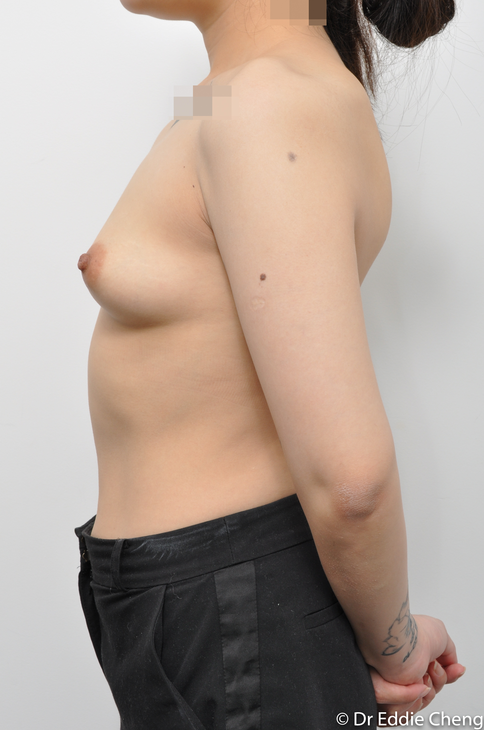 pre and post augmentation dr eddie cheng brisbane-5