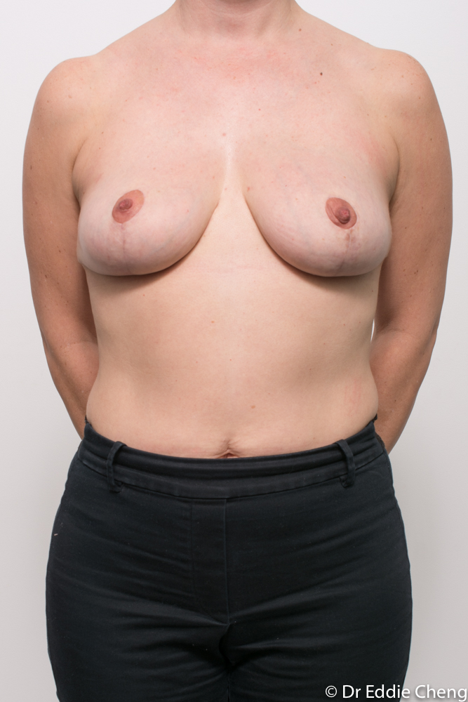 pre and post breast reduction dr eddie cheng brisbane (4 of 6)