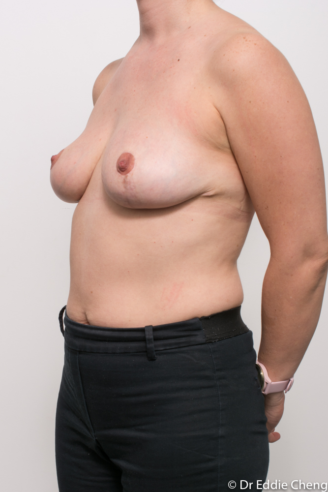 pre and post breast reduction dr eddie cheng brisbane (5 of 6)