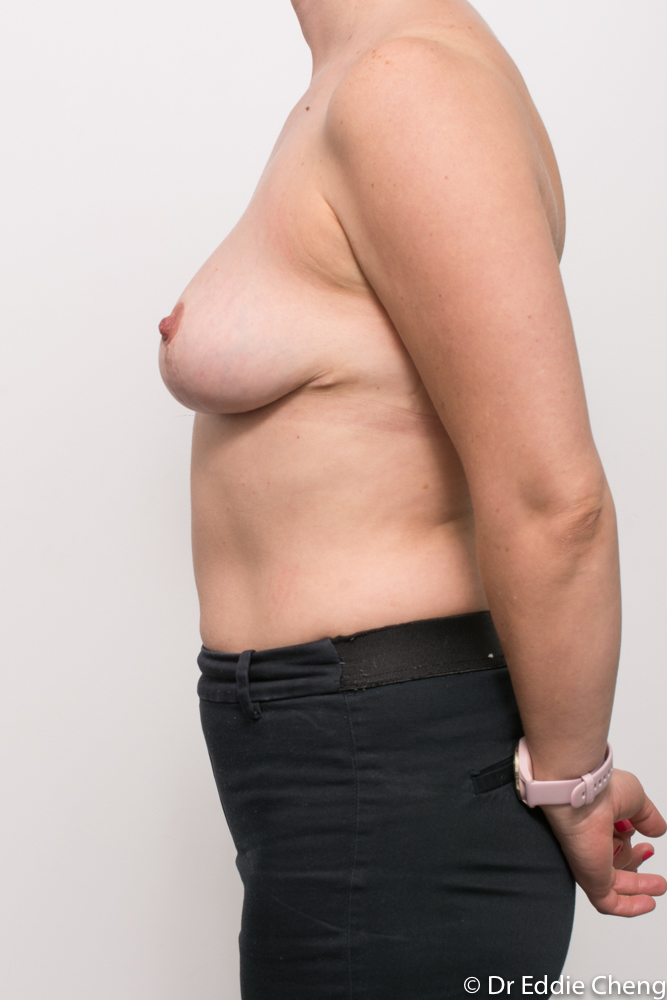 pre and post breast reduction dr eddie cheng brisbane (6 of 6)