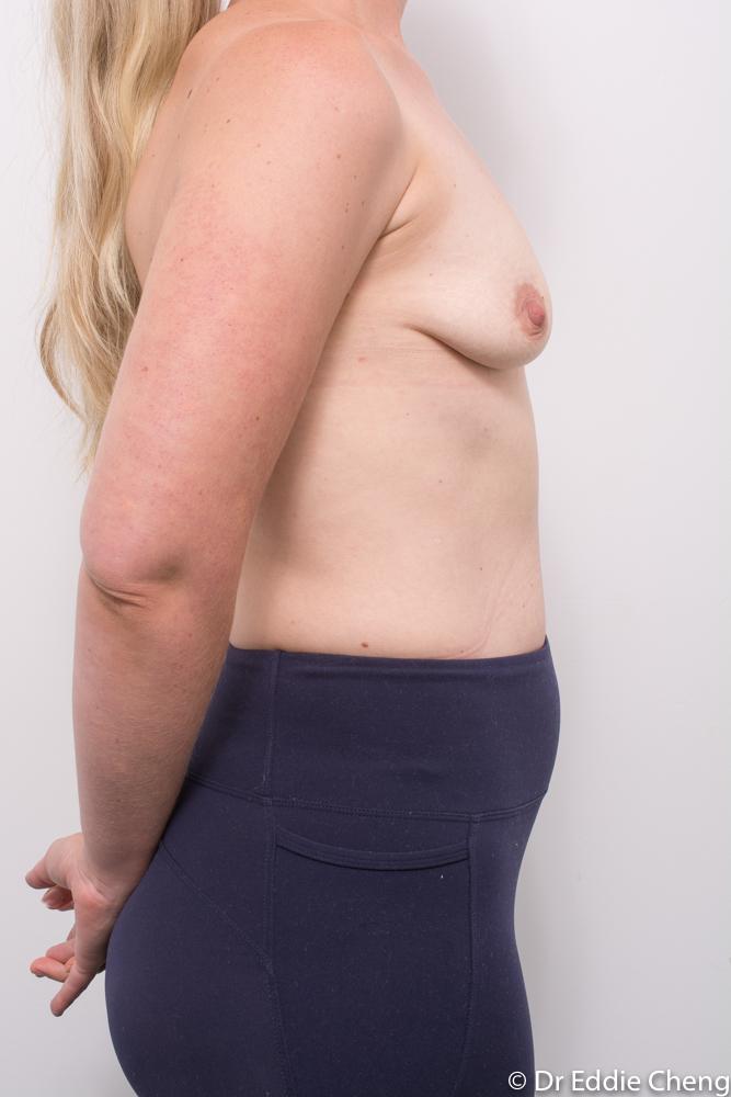 pre breast augmentation dr eddie cheng brisbane (1 of 3)