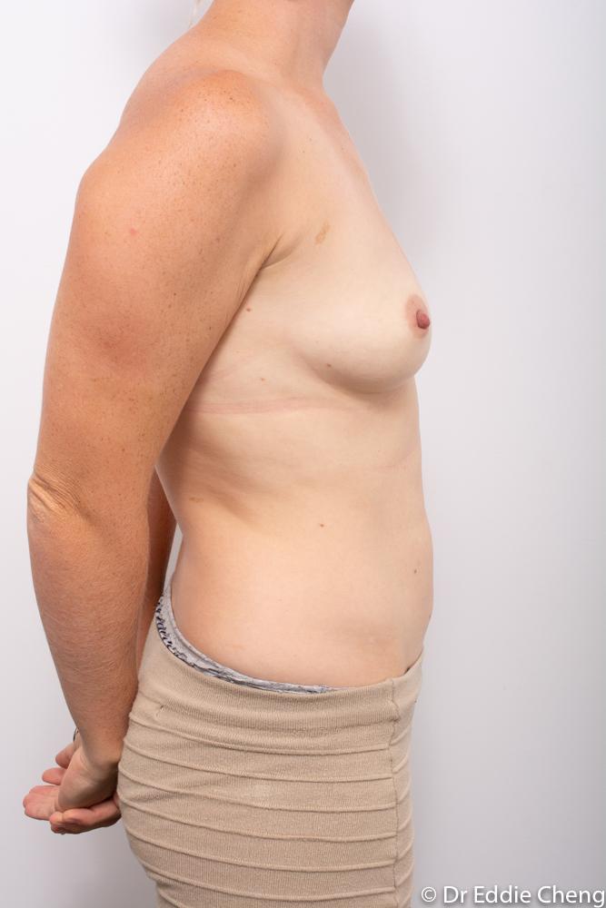 pre breast augmentation dr eddie cheng brisbane (1 of 5)