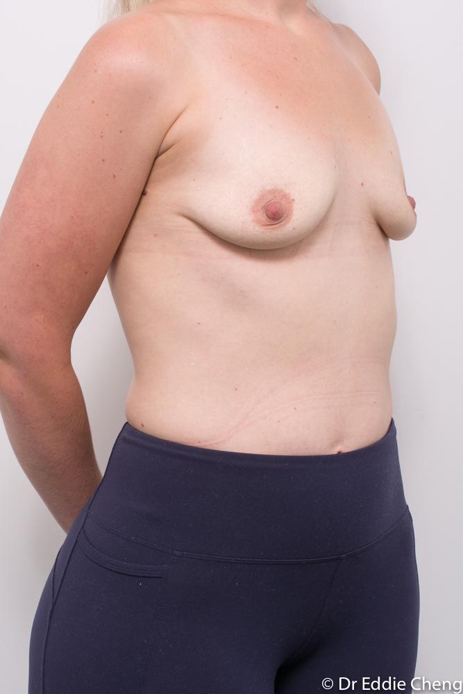 pre breast augmentation dr eddie cheng brisbane (2 of 3)
