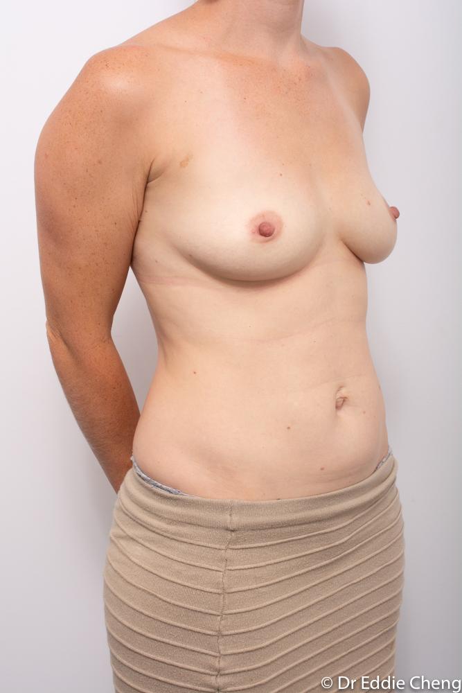 pre breast augmentation dr eddie cheng brisbane (2 of 5)