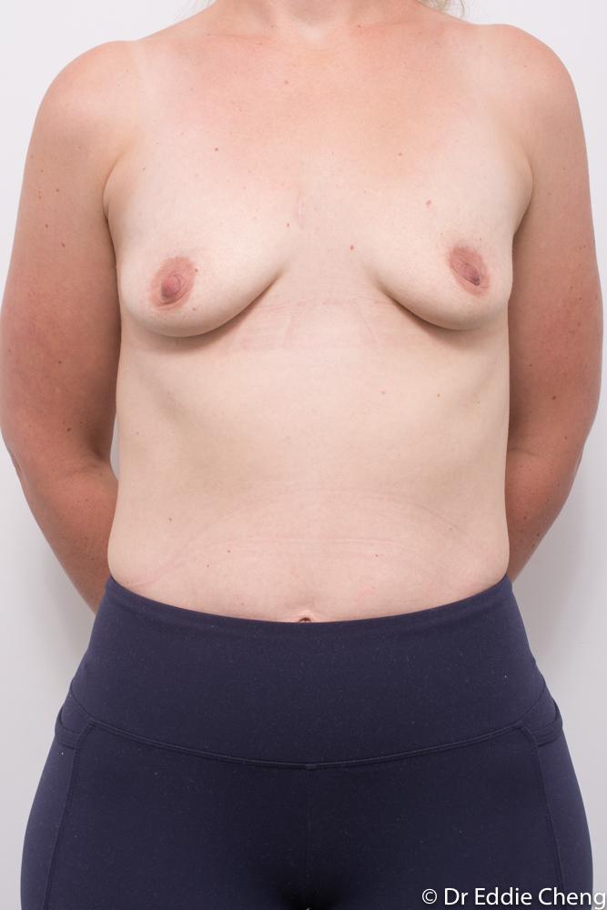 pre breast augmentation dr eddie cheng brisbane (3 of 3)